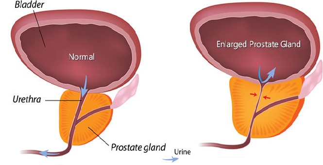 prostate gland grow larger